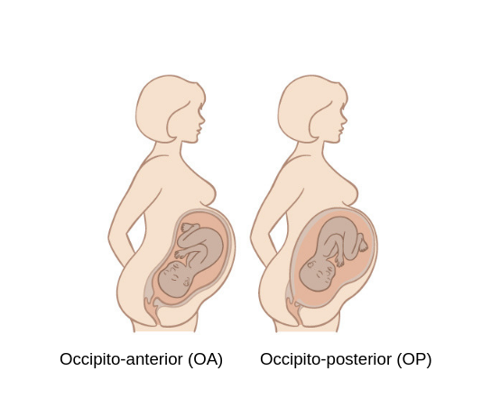 occipito-anterior and occipito-posterior position