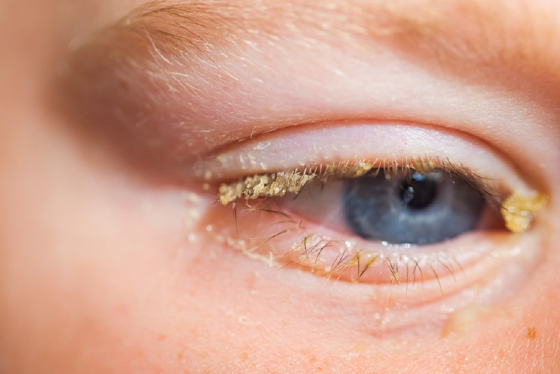 A child with conjunctivitis