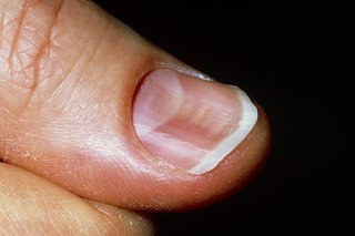 Nail problems - HSE ie