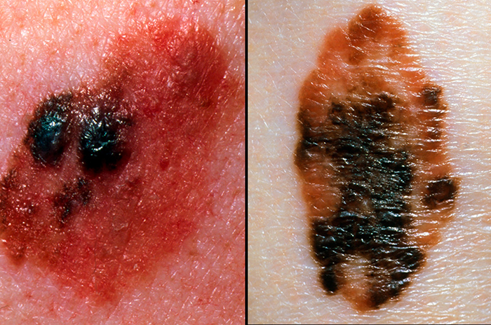Melanoma colours
