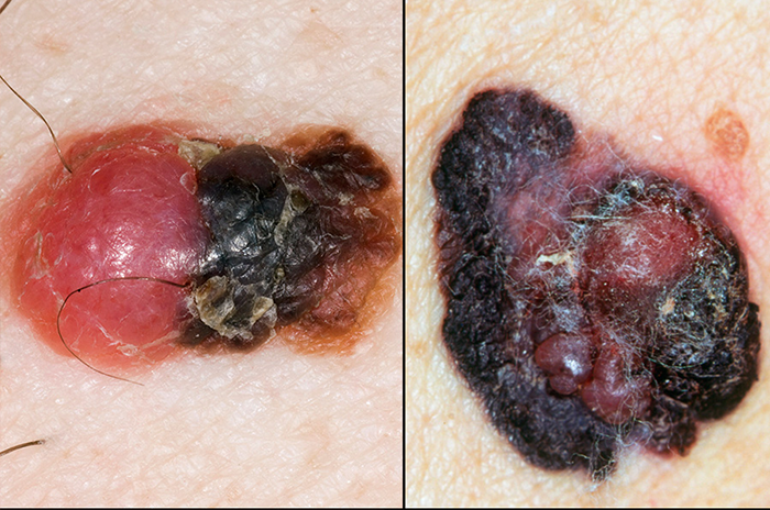 Melanoma elevation